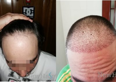 grupo_newhair_lineafrontal
